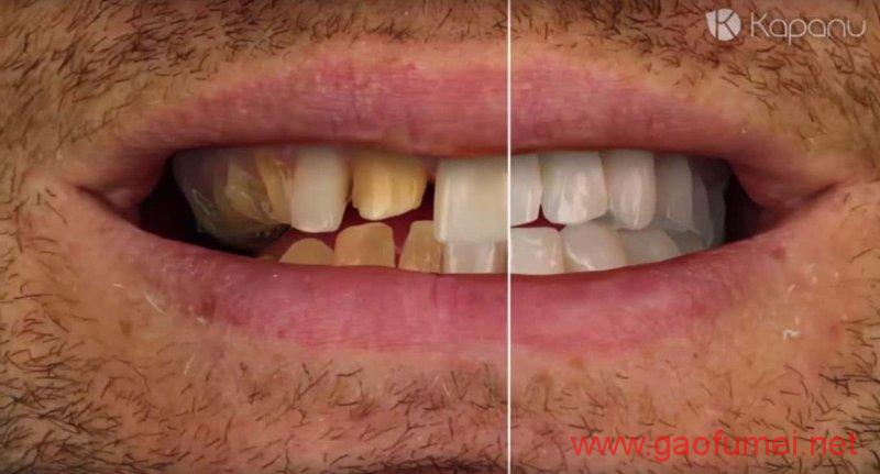 Ivoclar Vivadent完成对Kapanu的收购牙齿美容效果即时呈现 增强现实 第4张-泥人传说