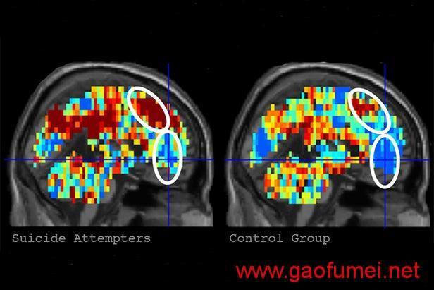 这款AI可识别病人的自杀想法准确率达91%
