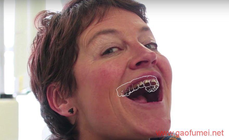 Ivoclar Vivadent完成对Kapanu的收购牙齿美容效果即时呈现 增强现实 第3张-泥人传说