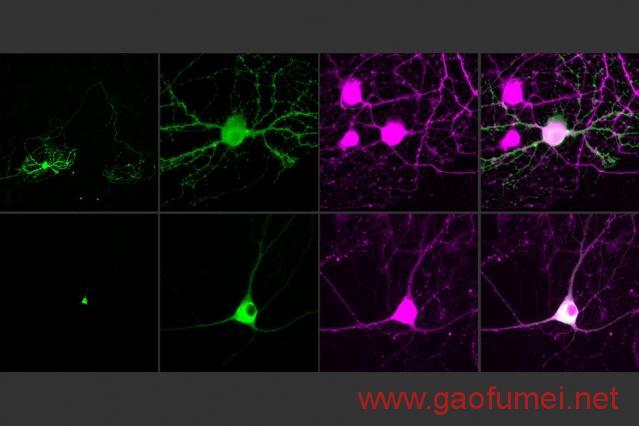 MIT用光操控单个神经元距离解析大脑还有多远 神经科学 第2张-泥人传说
