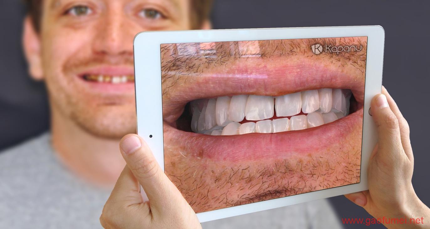 Ivoclar Vivadent完成对Kapanu的收购牙齿美容效果即时呈现 增强现实 第1张-泥人传说